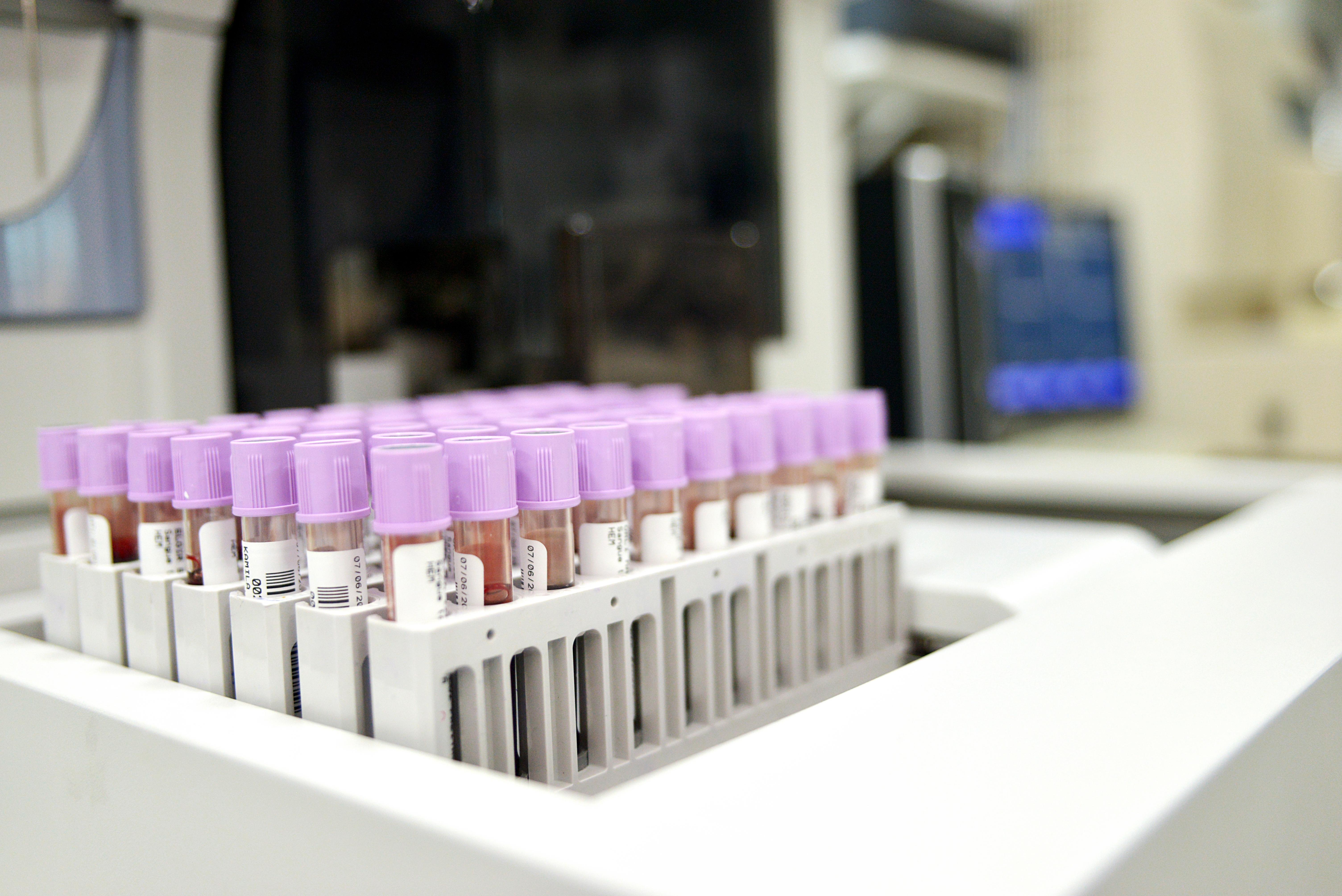 Sífilis, a epidemia crescente no Brasil